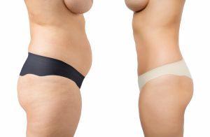 Chirurgia dupa graviditate